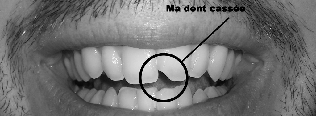 comment reparer des dents cassees