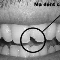 Ma dent cassée